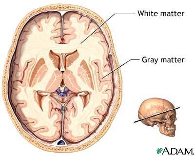 graywhitematter-1.jpg